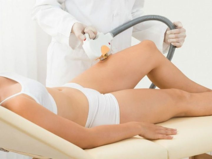 Laser Hair Removal: How does it Work